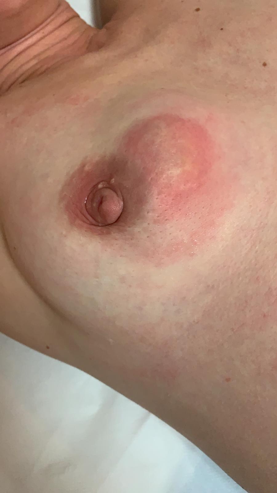 un espermatocele puede causar dolor extremo en la ingle